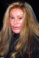 ugly-lady-botox